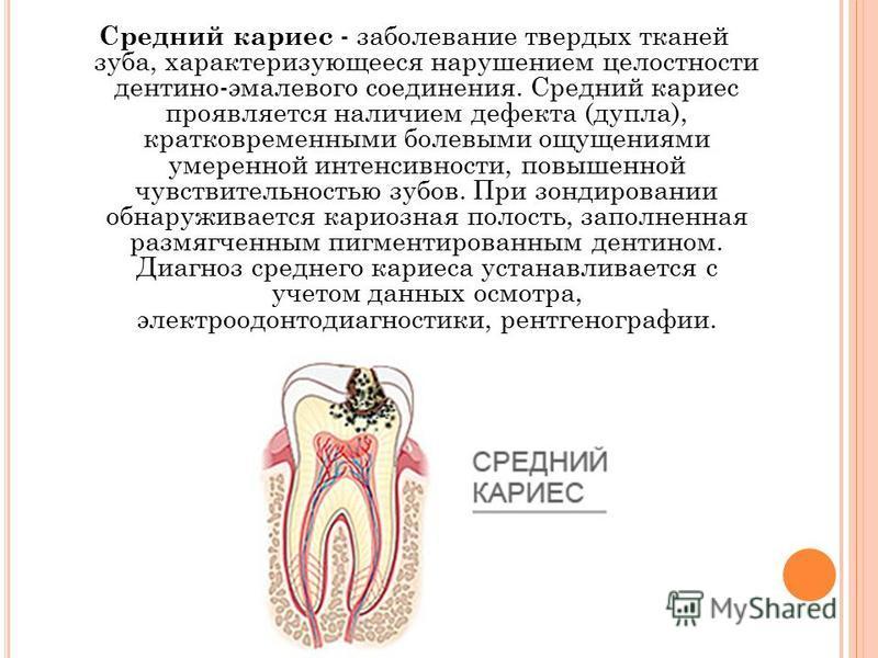 Средний кариес - заболевание твердых тканей зуба, характеризующееся нарушением целостности дентино-эмалевого соединения. Средний кариес проявляется наличием дефекта (дупла), кратковременными болевыми ощущениями умеренной интенсивности, повышенной чув