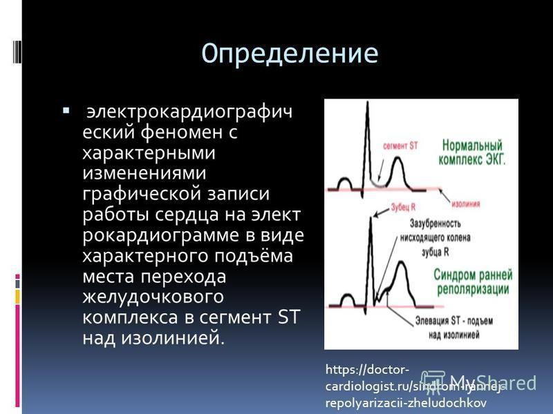 Определение электрокардиографический феномен с характерными изменениями графической записи работы сердца на электрокардиограмме в виде характерного подъёма места перехода желудочкового комплекса в сегмент ST над изолинией. https://doctor- cardiologis
