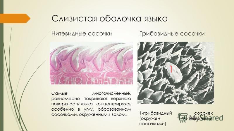 Слизистая оболочка языка Нитевидные сосочки Грибовидные сосочки Самые многочисленные, равномерно покрывают верхнюю поверхность языка, концентрируясь особенно в углу, образованном сосочками, окруженными валом. 1 1-грибовидный сосочек (окружен нитевидн