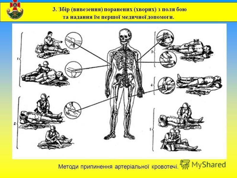 3. Збір (вивезення) поранених (хворих) з поля бою та надання їм першої медичної допомоги. Методи припинення артеріальної кровотечі.