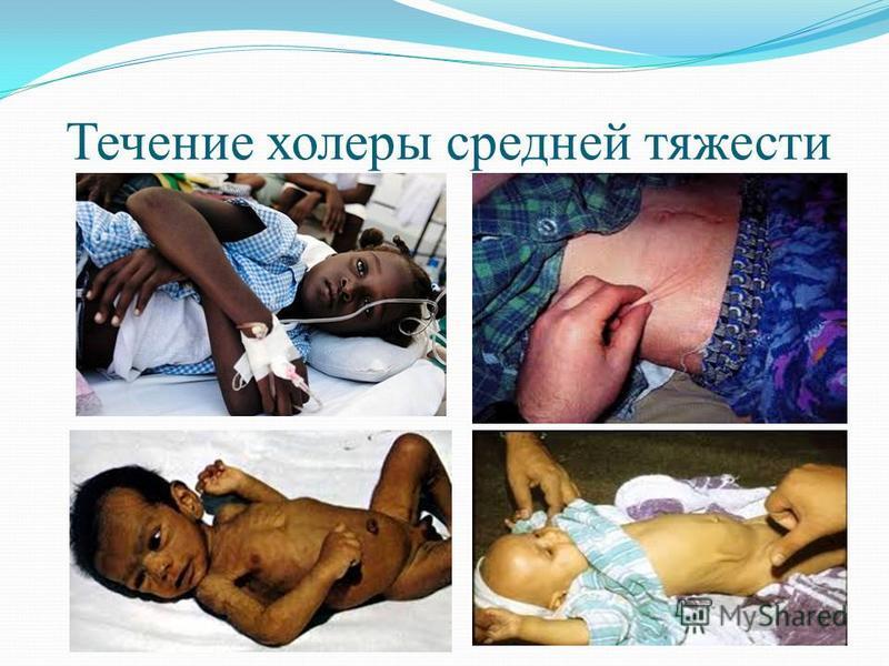 Течение холеры средней тяжести
