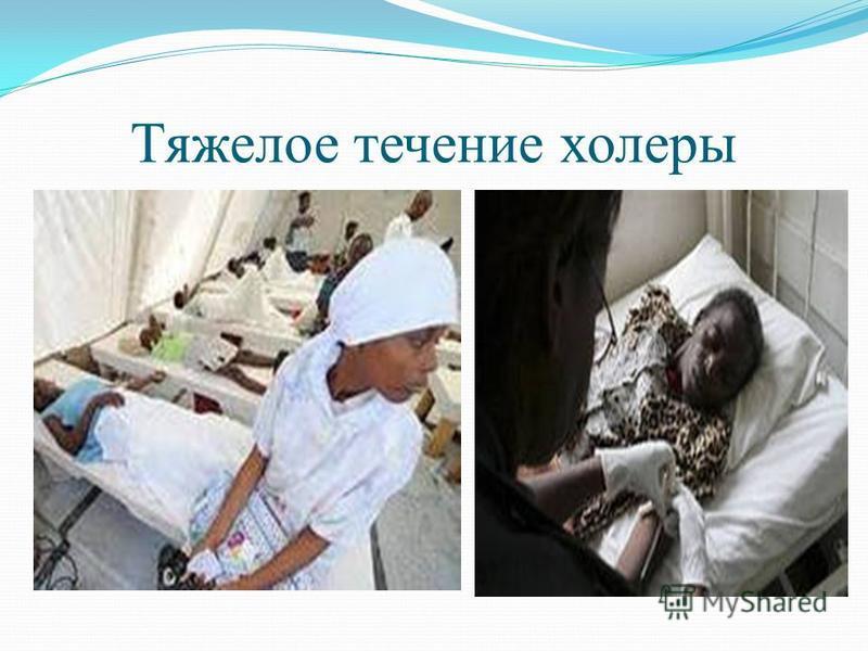 Тяжелое течение холеры
