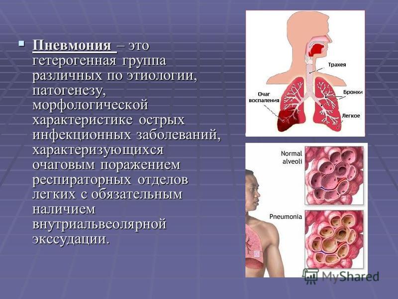 Пневмония – это гетерогенная группа различных по этиологии, патогенезу, морфологической характеристике острых инфекционных заболеваний, характеризующихся очаговым поражением респираторных отделов легких с обязательным наличием внутри альвеолярной экс
