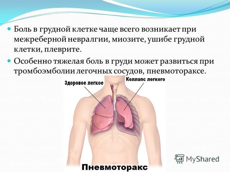 Боль в грудной клетке чаще всего возникает при межреберной невралгии, миозите, ушибе грудной клетки, плеврите. Особенно тяжелая боль в груди может развиться при тромбоэмболии легочных сосудов, пневмотораксе.