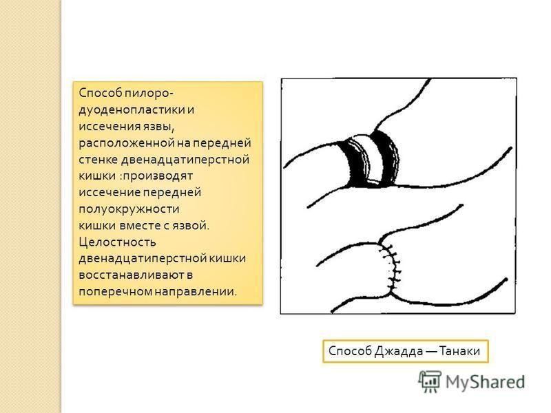 Способ пилоро - дуоденопластики и иссечения язвы, расположенной на передней стенке двенадцатиперстной кишки : производят иссечение передней полуокружности кишки вместе с язвой. Целостность двенадцатиперстной кишки восстанавливают в поперечном направл