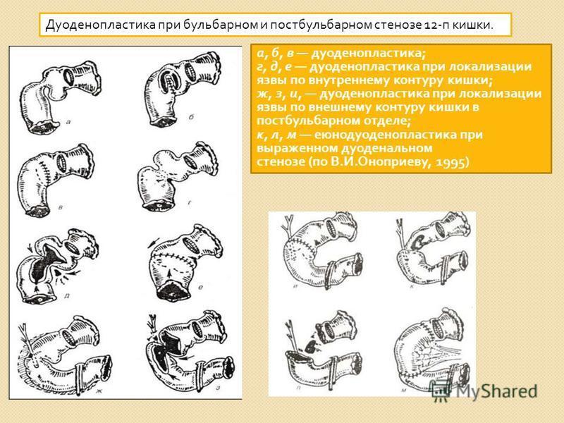 Дуоденопластика при бульбарном и постбульбарном стенозе 12- п кишки. а, б, в дуоденопластика ; г, д, е дуоденопластика при локализации язвы по внутреннему контуру кишки ; ж, з, и, дуоденопластика при локализации язвы по внешнему контуру кишки в постб