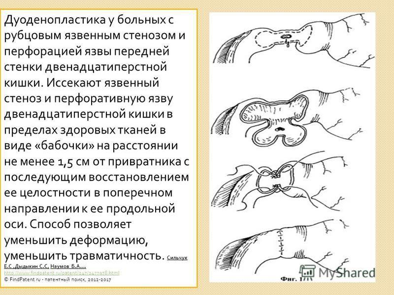 Дуоденопластика у больных с рубцовым язвенным стенозом и перфорацией язвы передней стенки двенадцатиперстной кишки. Иссекают язвенный стеноз и перфоративную язву двенадцатиперстной кишки в пределах здоровых тканей в виде « бабочки » на расстоянии не