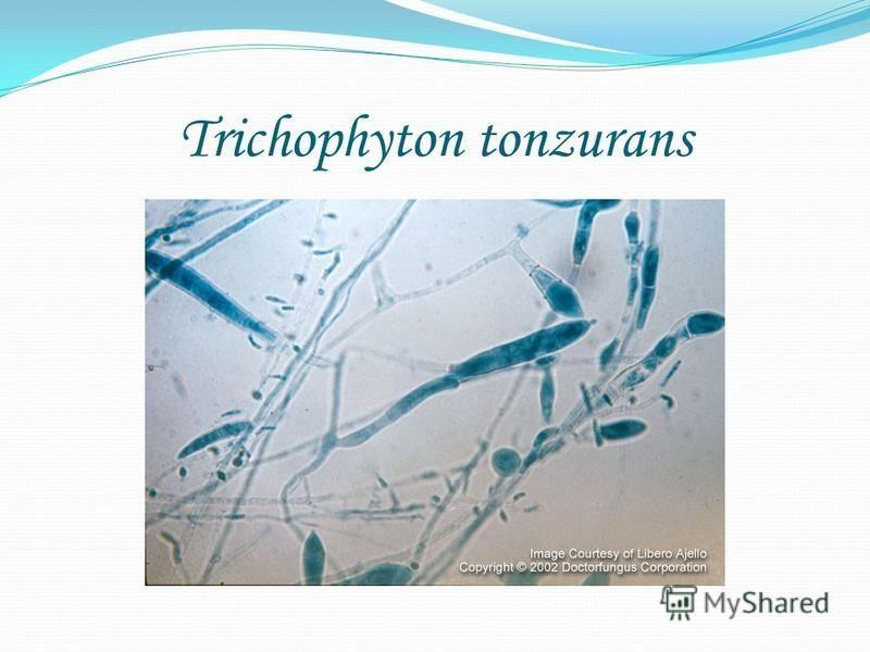 Trichophyton tonzurans