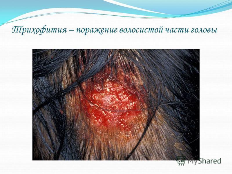 Трихофития – поражение волосистой части головы