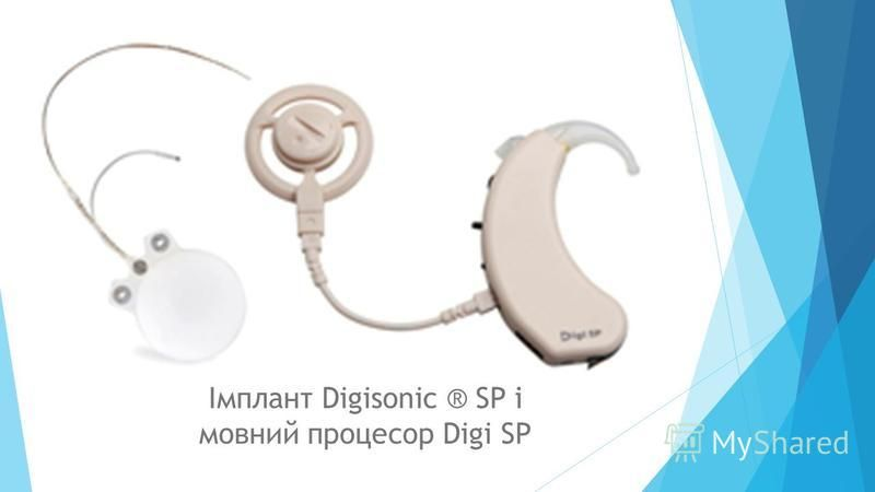 Імплант Digisonic ® SP і мовний процесор Digi SP