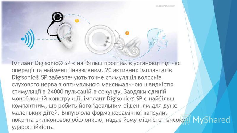 Імплант Digisonic® SP є найбільш простим в установці під час операції та найменш інвазивним. 20 активних імплантатів Digisonic® SP забезпечують точне стимуляція волосків слухового нерва з оптимальною максимальною швидкістю стимуляції в 24000 пульсаці