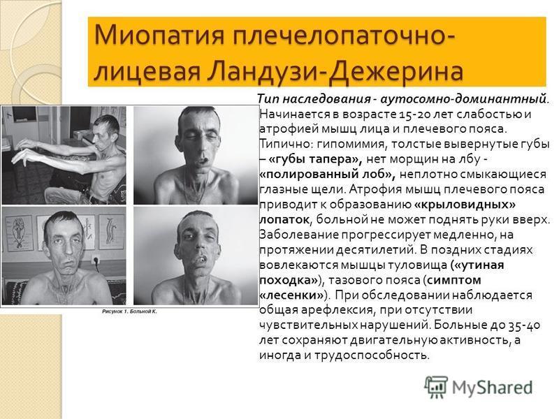Миопатия плече лопаточно - лицевая Ландузи - Дежерина Тип наследования - аутосомно - доминантный. Начинается в возрасте 15-20 лет слабостью и атрофией мышц лица и плечевого пояса. Типично : гипомимия, толстые вывернутые губы – « губы тапера », нет мо