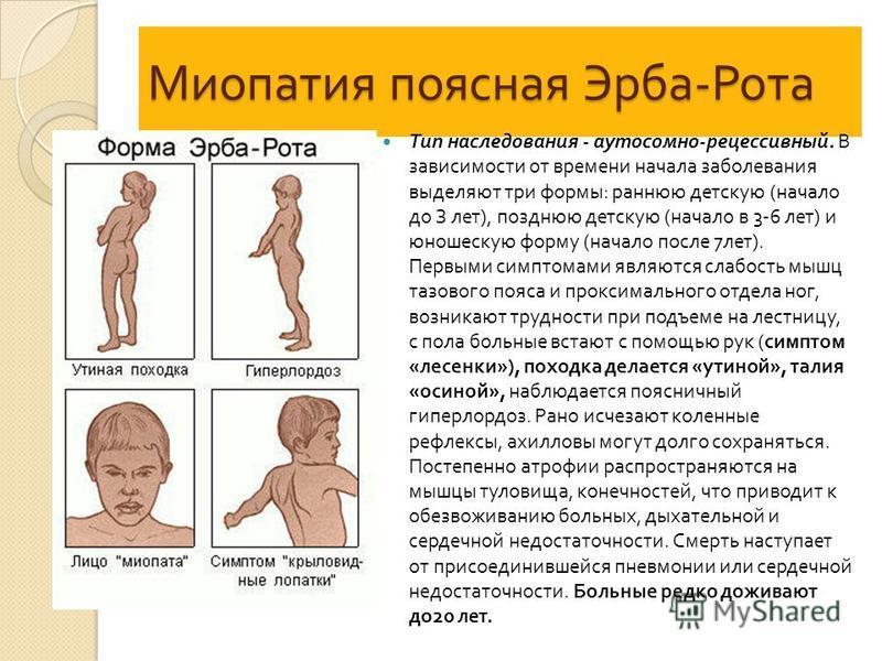 Миопатия поясная Эрба - Рота Тип наследования - аутосомно - рецессивный. В зависимости от времени начала заболевания выделяют три формы : раннюю детскую ( начало до З лет ), позднюю детскую ( начало в 3-6 лет ) и юношескую форму ( начало после 7 лет