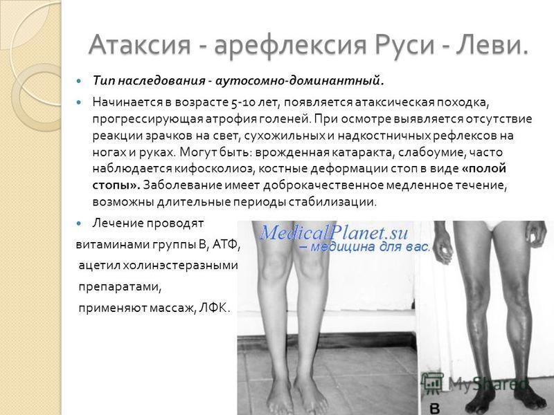 Атаксия - арефлексия Руси - Леви. Тип наследования - аутосомно - доминантный. Начинается в возрасте 5-10 лет, появляется атаксическая походка, прогрессирующая атрофия голеней. При осмотре выявляется отсутствие реакции зрачков на свет, сухожильных и н