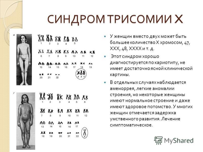 СИНДРОМ ТРИСОМИИ X У женщин вместо двух может быть большее количество X хромосом, 47, ХХХ, 48, ХХХХ и т. д. Этот синдром хорошо диагностируется по кариотипу, не имеет достаточно ясной клинической картины. В отдельных случаях наблюдается аменорея, лег