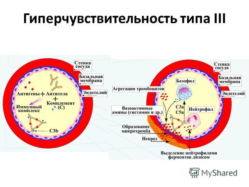 Гиперчувствительность типа III