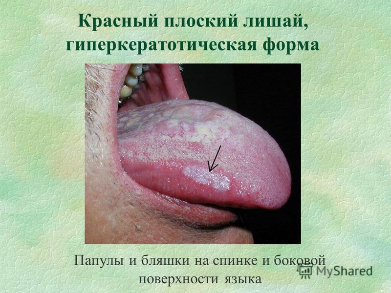 Красный плоский лишай, гиперкератотическая форма Папулы и бляшки на спинке и боковой поверхности языка