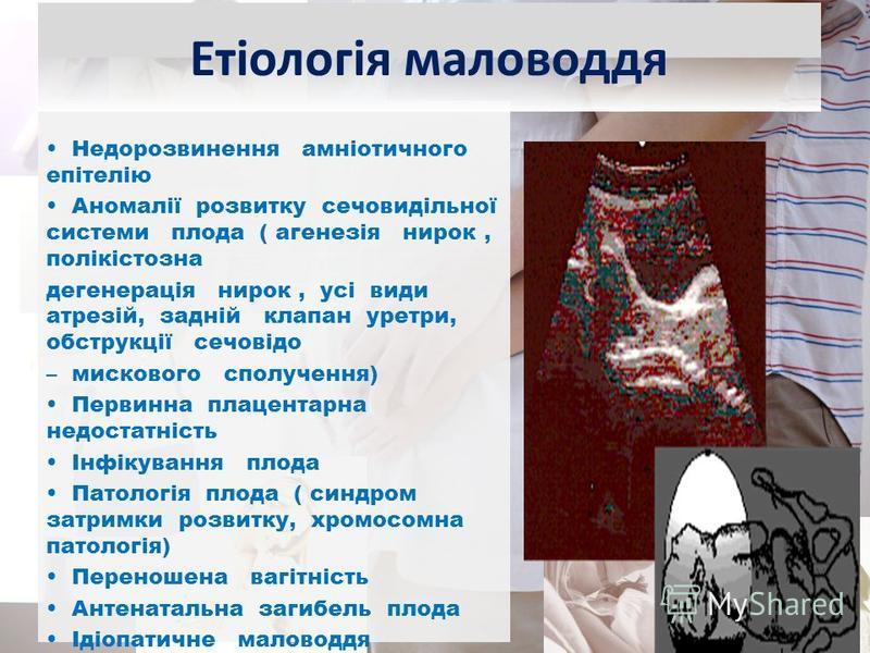 Недорозвинення амніотичного епітелію Аномалії розвитку сечовидільної системи плода ( агенезія нирок, полікістозна дегенерація нирок, усі види атрезій, задній клапан уретри, обструкції сечовідо – мискового сполучення) Первинна плацентарна недостатніст