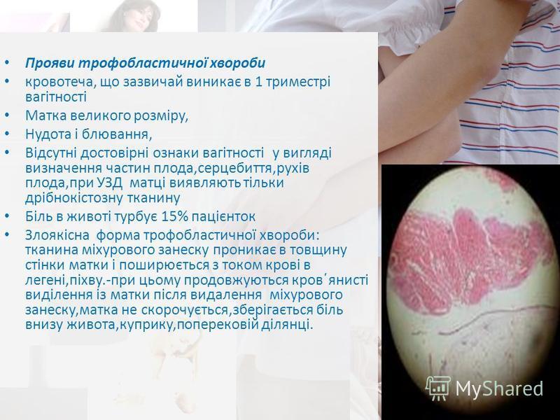 Прояви трофобластичної хвороби кровотеча, що зазвичай виникає в 1 триместрі вагітності Матка великого розміру, Нудота і блювання, Відсутні достовірні ознаки вагітності у вигляді визначення частин плода,серцебиття,рухів плода,при УЗД матці виявляють т