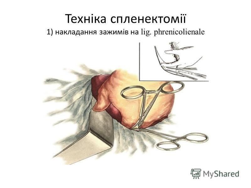 Техніка спленектомії 1) накладання зажимів на lig. phrenicolienale