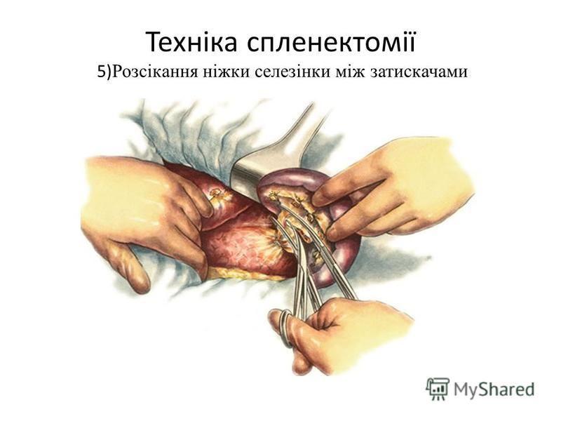 Техніка спленектомії 5) Розсікання ніжки селезінки між затискачами
