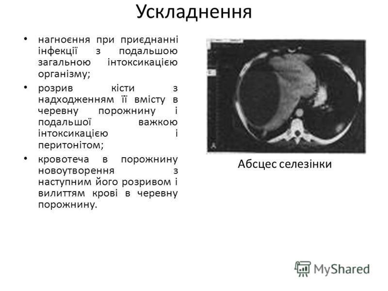 Ускладнення нагноєння при приєднанні інфекції з подальшою загальною інтоксикацією організму; розрив кісти з надходженням її вмісту в черевну порожнину і подальшої важкою інтоксикацією і перитонітом; кровотеча в порожнину новоутворення з наступним йог