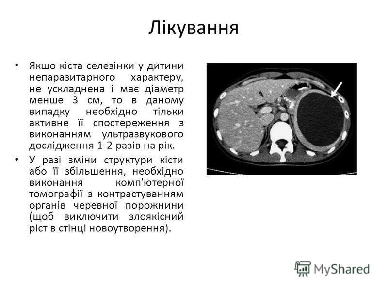 Лікування Якщо кіста селезінки у дитини непаразитарного характеру, не ускладнена і має діаметр менше 3 см, то в даному випадку необхідно тільки активне її спостереження з виконанням ультразвукового дослідження 1-2 разів на рік. У разі зміни структури