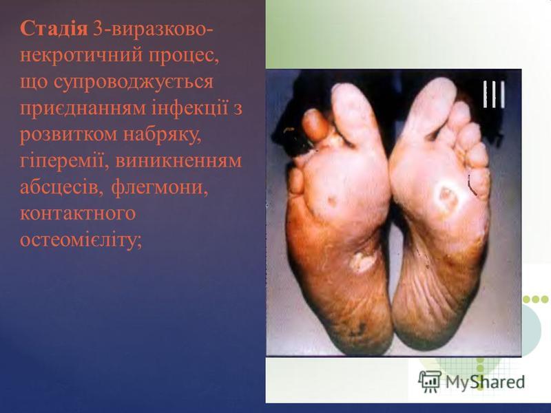 Стадія 3-виразково- некротичний процес, що супроводжується приєднанням інфекції з розвитком набряку, гіперемії, виникненням абсцесів, флегмони, контактного остеомієліту;