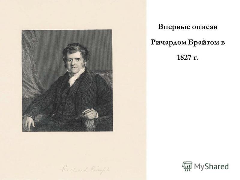 Впервые описан Ричардом Брайтом в 1827 г.