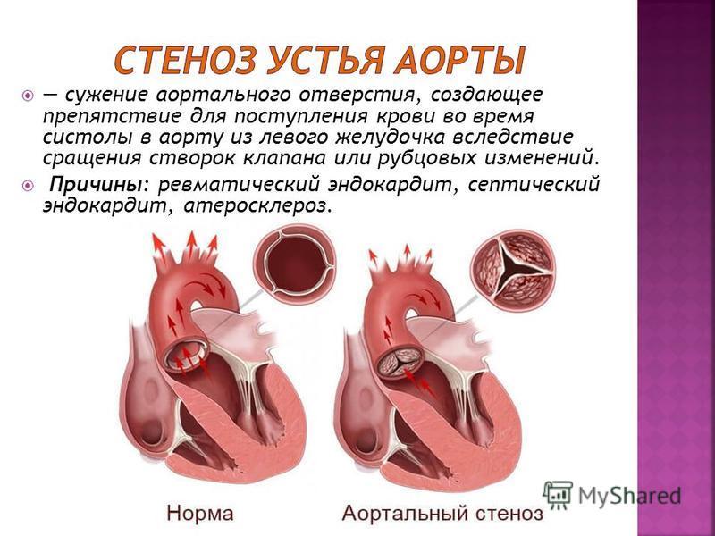 сужение аортального отверстия, создающее препятствие для поступления крови во время систолы в аорту из левого желудочка вследствие сращения створок клапана или рубцовых изменений. Причины: ревматический эндокардит, септический эндокардит, атеросклеро