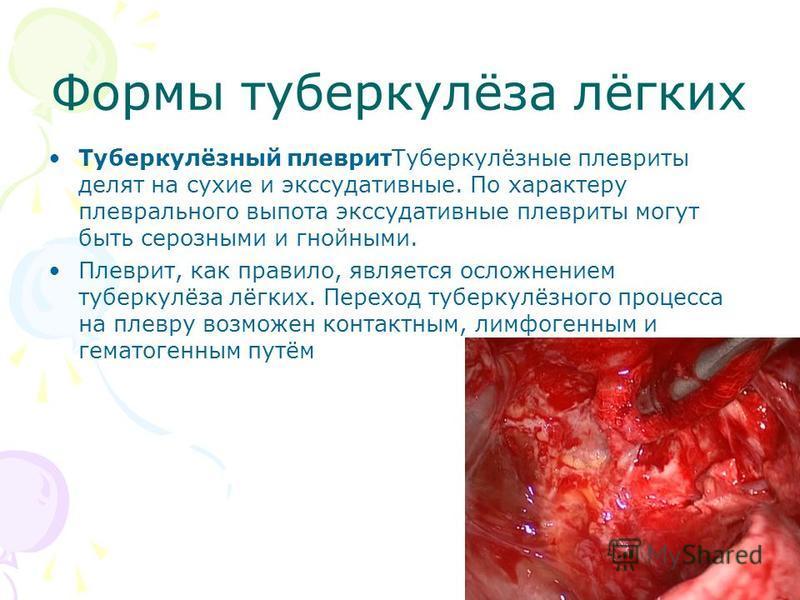 Формы туберкулёза лёгких Туберкулёзный плеврит Туберкулёзные плевриты делят на сухие и экссудативные. По характеру плеврального выпота экссудативные плевриты могут быть серозными и гнойными. Плеврит, как правило, является осложнением туберкулёза лёгк