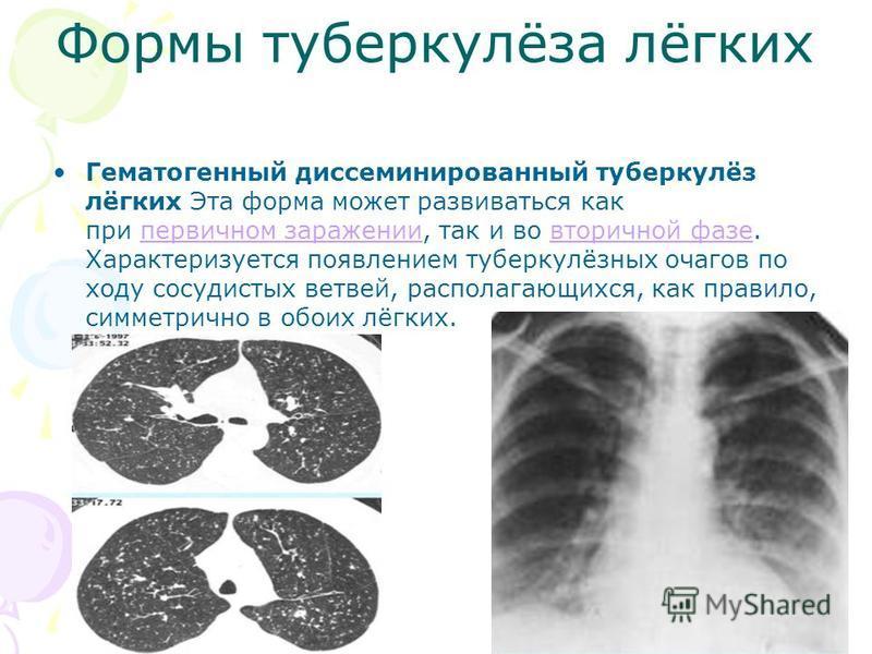Формы туберкулёза лёгких Гематогенный диссеминированный туберкулёз лёгких Эта форма может развиваться как при первичном заражении, так и во вторичной фазе. Характеризуется появлением туберкулёзных очагов по ходу сосудистых ветвей, располагающихся, ка