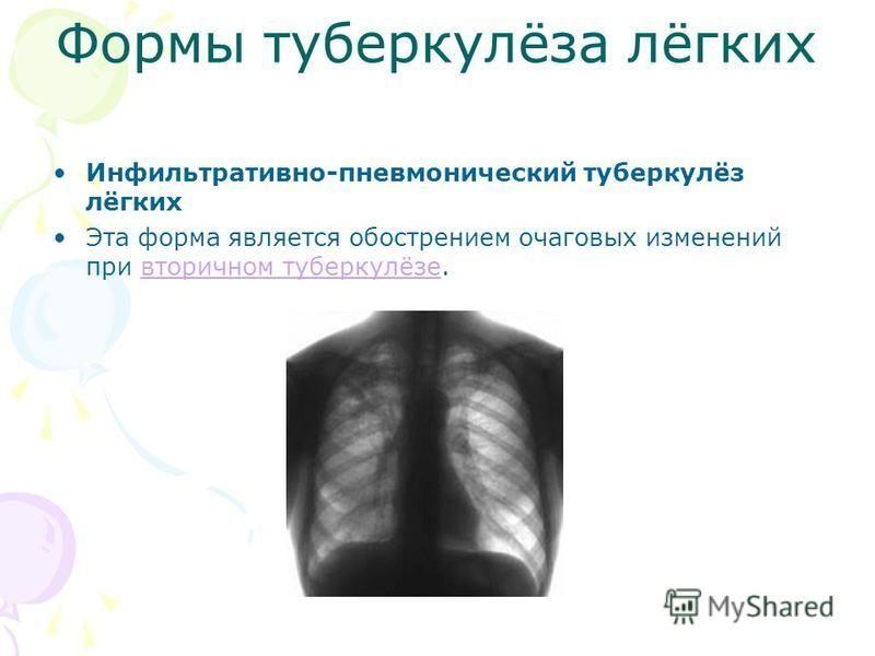 Формы туберкулёза лёгких Инфильтративно-пневмонический туберкулёз лёгких Эта форма является обострением очаговых изменений при вторичном туберкулёзе.вторичном туберкулёзе