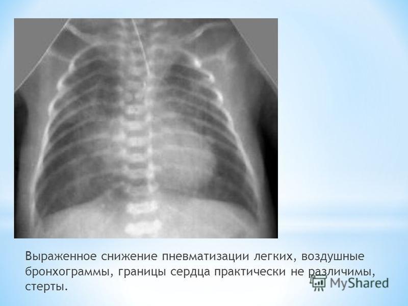 Выраженное снижение пневматизации легких, воздушные бронхограммы, границы сердца практически не различимы, стерты.