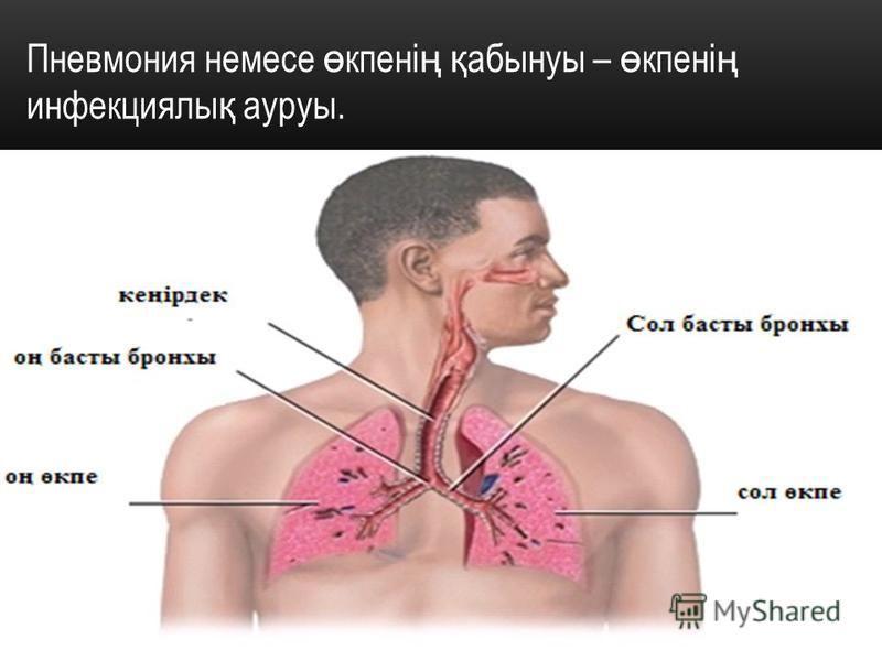 Пневмония немсе ө купені ң қ абынуфы – ө купені ң инфекцияли қ ауруфы.