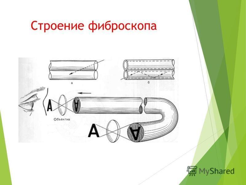 Строение фиброскопа