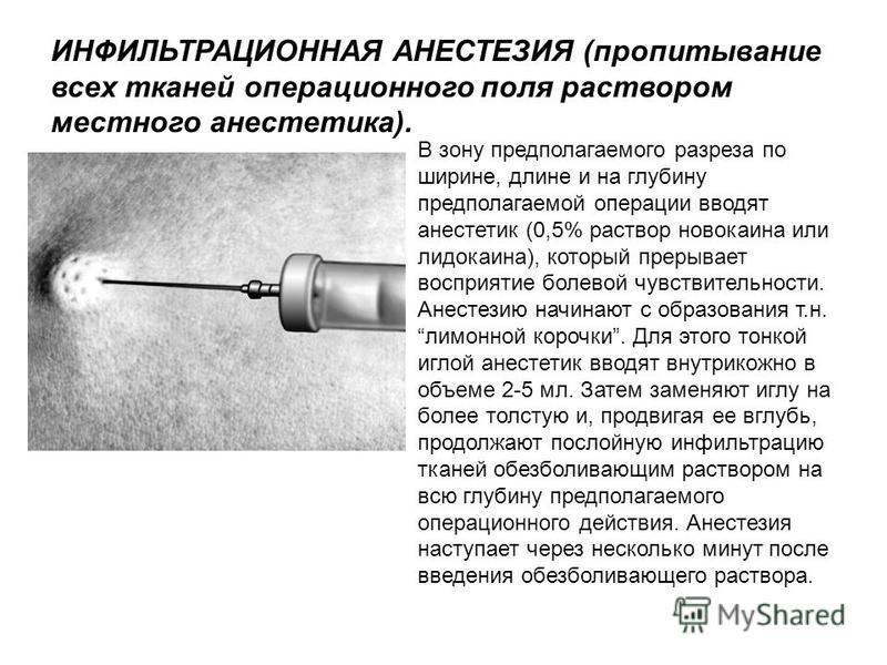 В зону предполагаемого разреза по ширине, длине и на глубину предполагаемой операции вводят анестетик (0,5% раствор новокаина или лидокаина), который прерывает восприятие болевой чувствительности. Анестезию начинают с образования т.н. лимонной корочк
