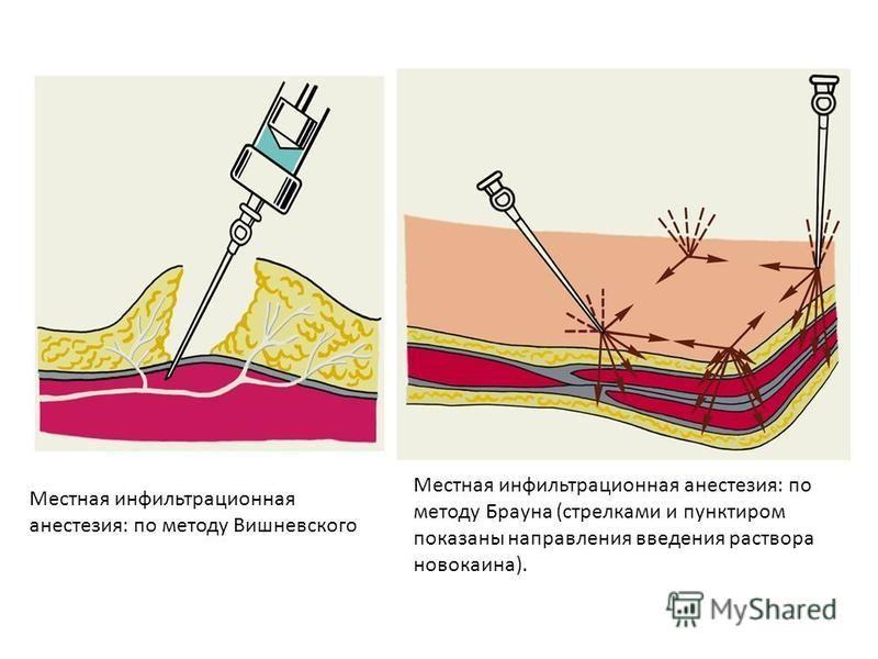 Местная инфильтрационная анестезия: по методу Брауна (стрелками и пунктиром показаны направления введения раствора новокаина). Местная инфильтрационная анестезия: по методу Вишневского