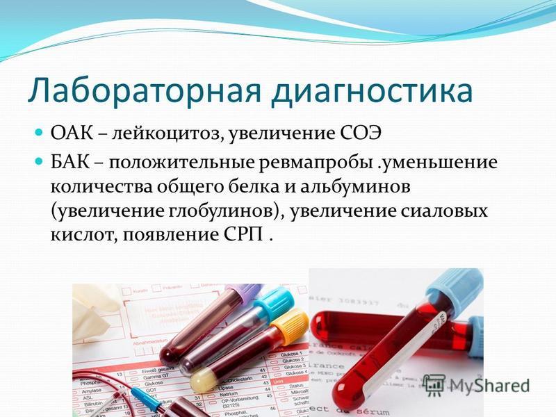 Лабораторная диагностика ОАК – лейкоцитоз, увеличение СОЭ БАК – положительные ревмапробы.уменьшение количества общего белка и альбуминов (увеличение глобулинов), увеличение сиаловых кислот, появление СРП.