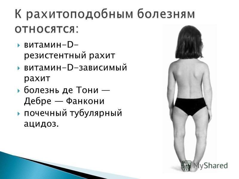 витамин-D- резистентный рахит витамин-D-зависимый рахит болезнь де Тони Дебре Фанкони почечный тубулярный ацидоз.