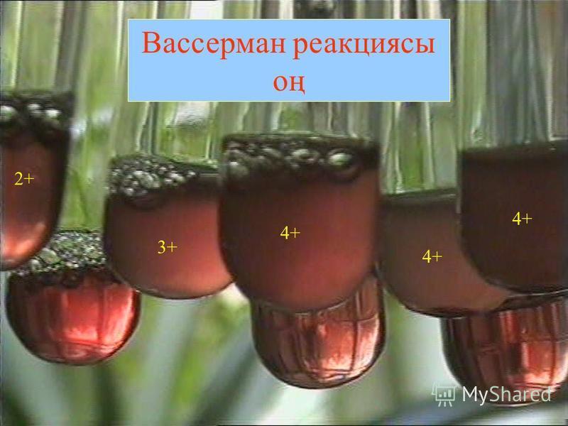 Вассерман реакциясы оң 2+ 3+ 4+