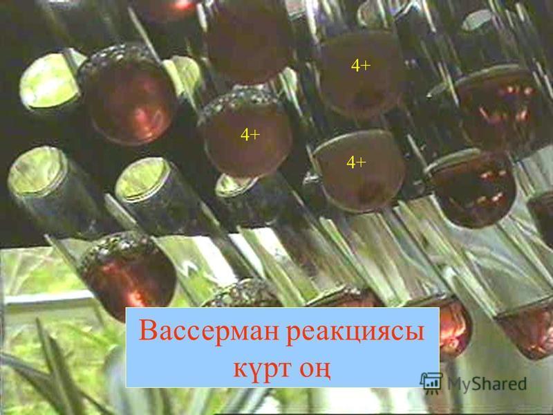 Вассерман реакциясы күрт оң 4+