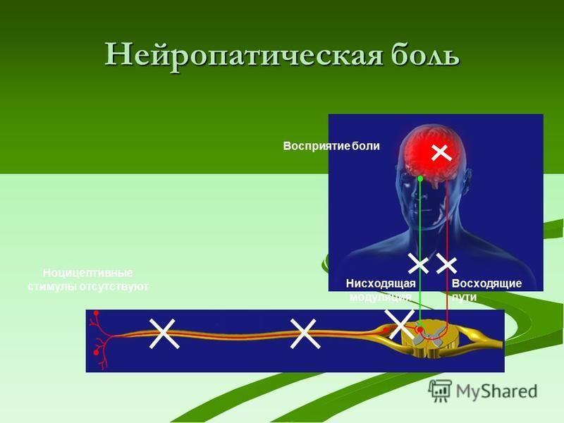 Нисходящая модуляция Восходящие пути Восприятие боли Нейропатическая боль Ноцицептивные стимулы отсутствуют