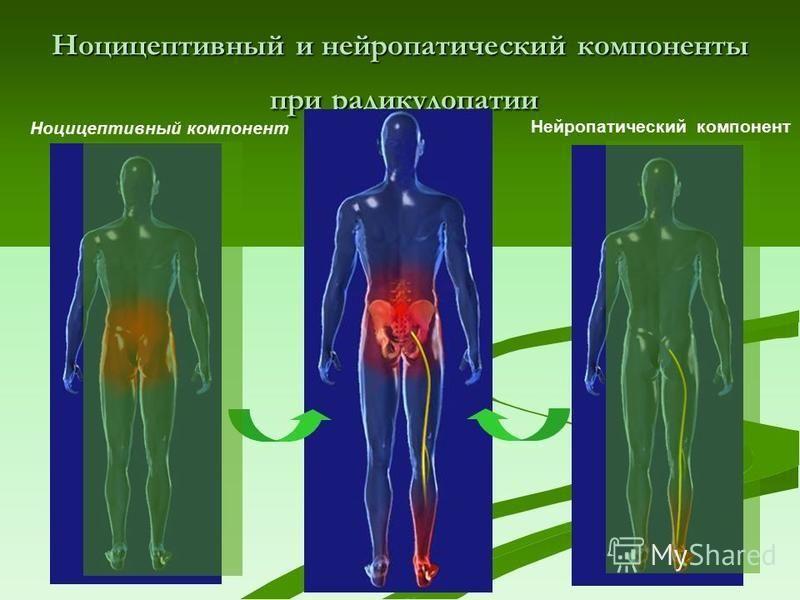 Ноцицептивный и нейропатический компоненты при радикулопатии Нейропатический компонент Ноцицептивный компонент