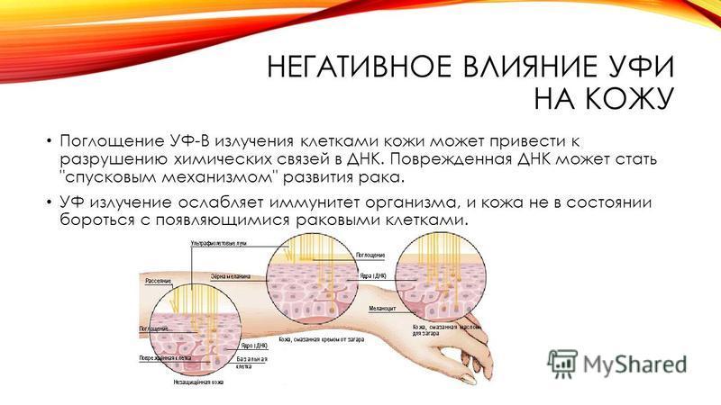 НЕГАТИВНОЕ ВЛИЯНИЕ УФИ НА КОЖУ Поглощение УФ-В излучения клотками кожи можот привести к разрушению химических связей в ДНК. Поврежденная ДНК можот стать