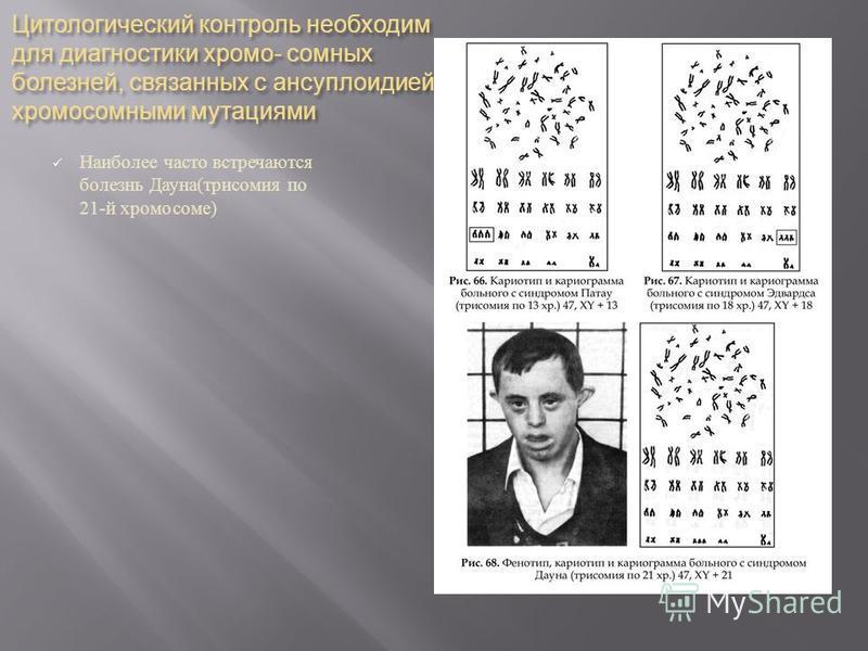 Цитологический контроль необходим для диагностики хромосомных болезней, связанных с ансуплоидией и хромосомными мутациями Наиболее часто встречаются болезнь Дауна ( трисомия по 21- й хромосоме )