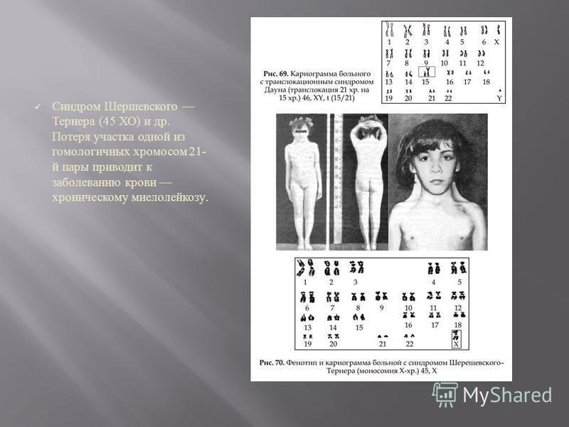 Синдром Шершевского Тернера (45 ХО ) и др. Потеря участка одной из гомологичных хромосом 21- й пары приводит к заболеванию крови хроническому миелолейкозу.