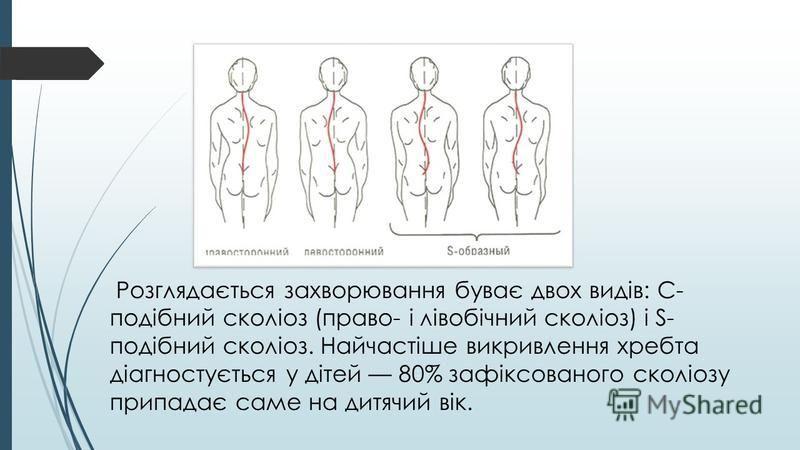 Розглядається захворювання буває двох видів: С- подібний сколіоз (право- і лівобічний сколіоз) і S- подібний сколіоз. Найчастіше викривлення хребта діагностується у дітей 80% зафіксованого сколіозу припадає саме на дитячий вік.