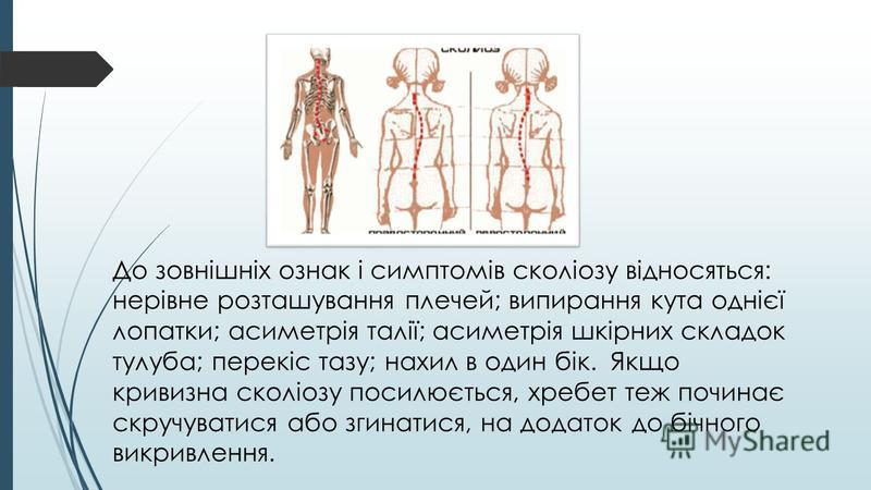 До зовнішніх ознак і симптомів сколіозу відносяться: нерівне розташування плечей; випирання кута однієї лопатки; асиметрія талії; асиметрія шкірних складок тулуба; перекіс тазу; нахил в один бік. Якщо кривизна сколіозу посилюється, хребет теж починає