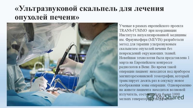 «Ультразвуковой скальпель для лечения опухолей печени» Ученые в рамках европейского проекта TRANS-FUSIMO при координации Института визуализированной медицины им. Фраунхофера (MEVIS) разработали метод для терапии ультразвуковым скальпелем опухолей печ